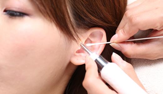 耳鼻 科 耳 掃除 だけ 料金